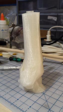 Tib/Fib Spiral Fracture