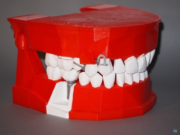 Dental Demonstration Model / Modèle de démonstration dentaire